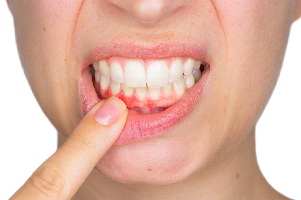 gyökérkezelés Dental Sarvar