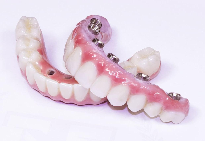 Implantátum Dental Sárvár