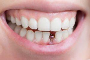 Stiftkrone Dental Sárvár