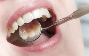 Ästhetische Füllung Dental Sárvár
