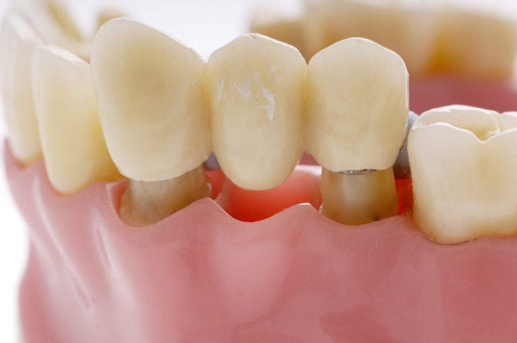 Zahnbrücke Dental Sárvár