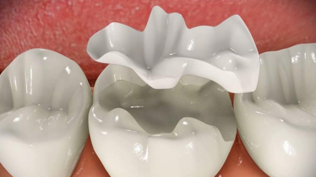 inlay Dental Sárvár